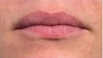 LipSense Lip Volumizer Before